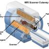 """The """"open """" MRI"""